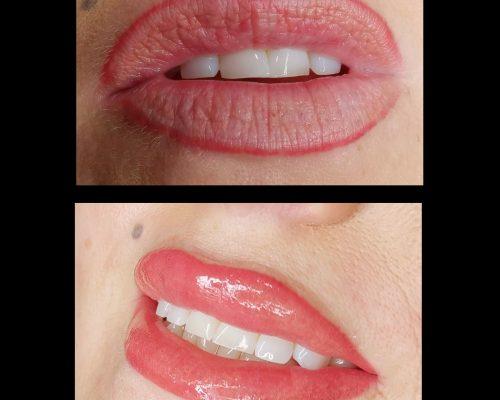 Cosmetic Tattoo – Lips
